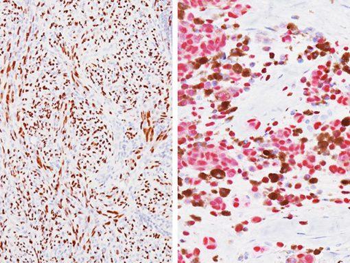 SOX10 Antibody, (Left) Spindle cell melanoma (DAB) Antibody; (Right) Pigmented melanoma (Fast red) Antibody