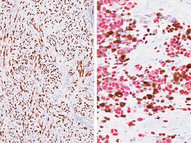 (Left) Spindle cell melanoma (DAB) Antibody; (Right) Pigmented melanoma (Fast red) Antibody