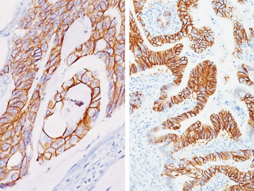 (Left) Colon adenocarcinoma stained with CDH17 antibody; (Right) Stomach adenocarcinoma stained with CDH17 antibody