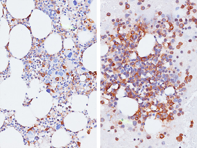 (L) - Acute Myelogenous Leukemia in bone marrow stained with CD33 / (R) - Myelodysplastic Syndrome in bone marrow aspirate stained with CD33.
