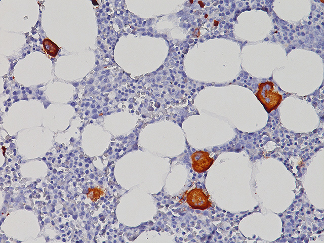 Megakaryocyte in bone marrow stained with CD11c (Leu-M5) antibody