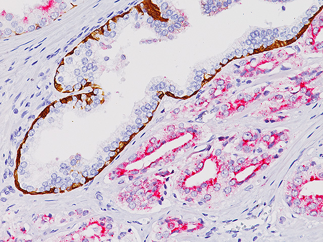 Prostate cancer stained with CK HMW + p63 + AMACR (RM)