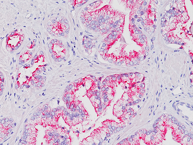 Prostate cancer stained with AMACR (RM) antibody