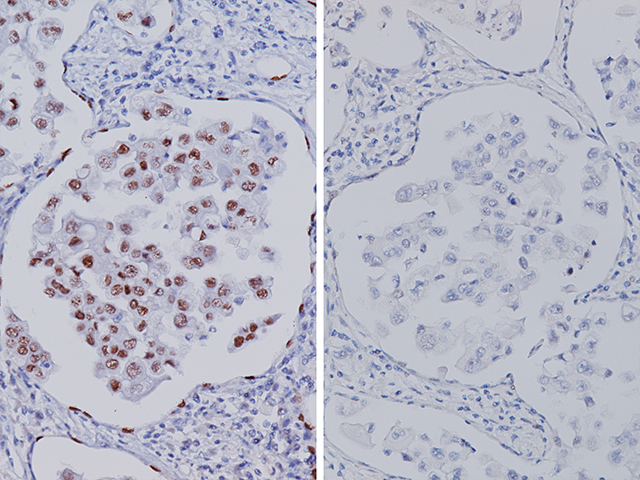 (L) – Lung adenocarcinoma stained with TTF-1 [SPT24] / (R) – Lung adenocarcinoma stained with TTF-1 [8G7G3/1]