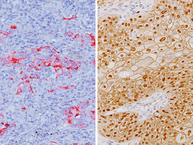 (L) – Lung adenocarcinoma stained with DSG3 (-), p40 (-) and Napsin A (+) / (R) – Lung squamous cell carcinoma stained with DSG3 (+), p40 (+) and Napsin A (-)
