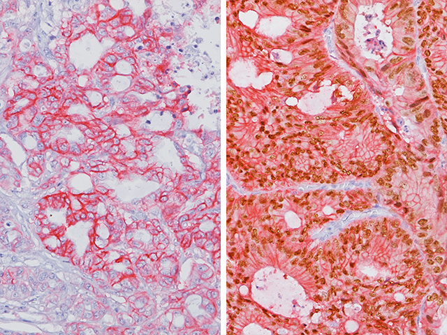 (L) - Colon cancer stained with CDH17 (+) and CDX2 (-) / (R) Colon cancer stained with CDH17 (+) and CDX2 (+)