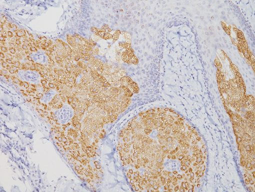 Sebaceous carcinoma stained with Adipophilin antibody