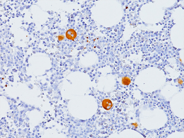 Megakaryocytes & platelets in bone marrow stained with CD61 antibody