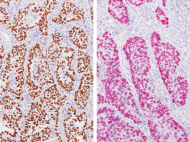 (L) – Lung ADC stained with TTF-1 + p40 (cRM) / (R) – Lung SqCC stained with TTF-1 + p40 (cRM)