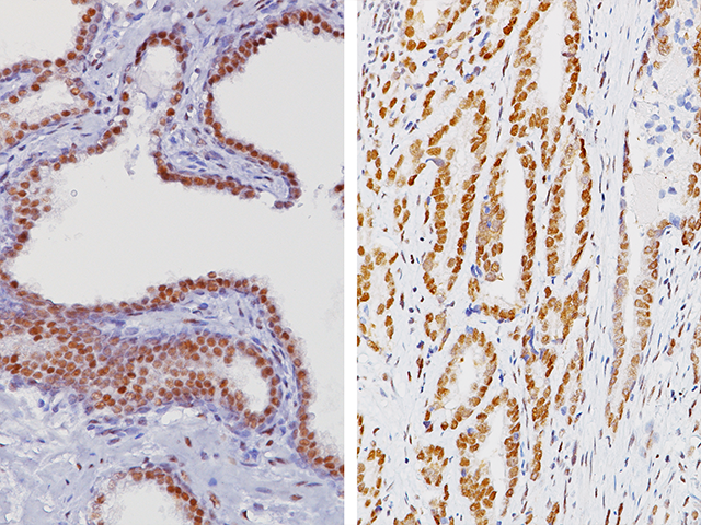 (L) – Normal prostate tissue stained with ERCC1 / (R) – Prostate cancer stained with ERCC1
