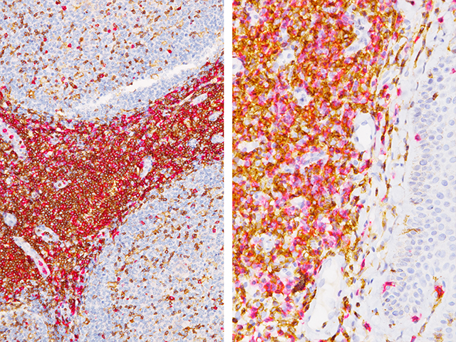 (L) – Tonsil stained with CD4 + CD8 / (R) – Mycosis fungoides stained with CD4 + CD8