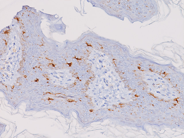 CD1a and normal skin