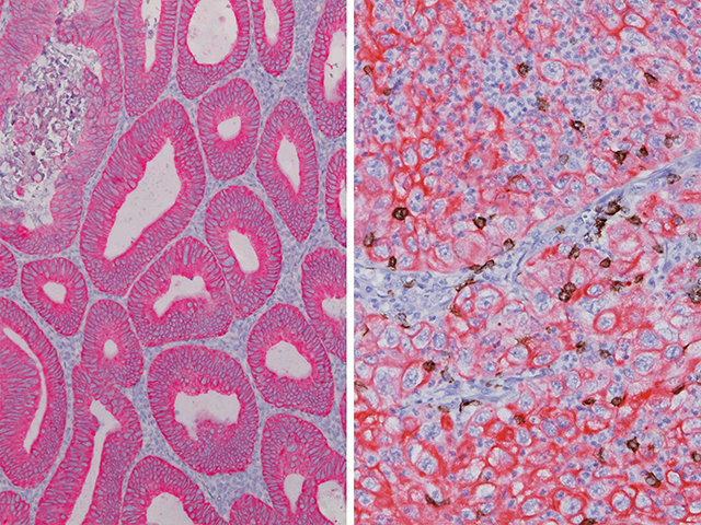 L) Colon cancer stained with CK8_18 (RM), (R) Colon cancer stained with CK8_18 (RM) + FOXP3