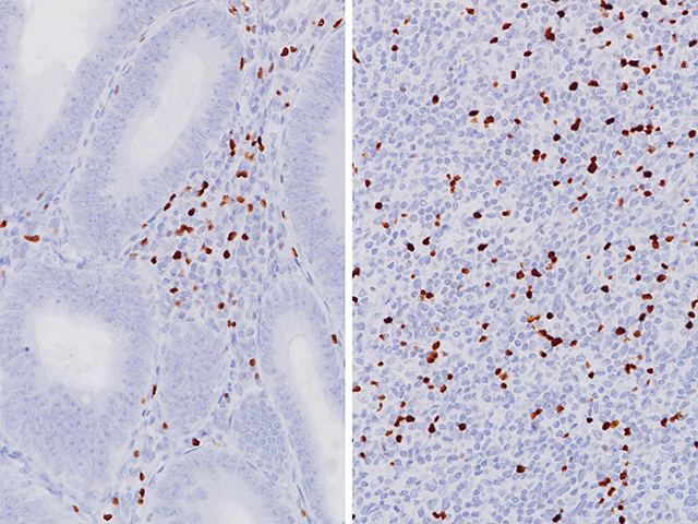 (L) Colon cancer stained with FOXP3, (R) Melanoma stained with FOXP3