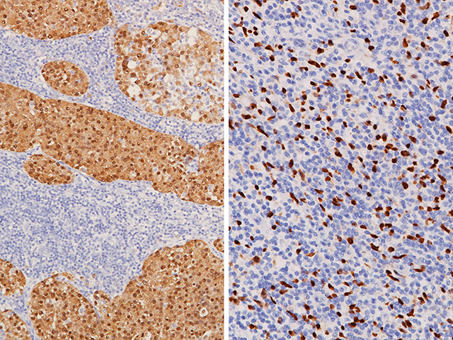 (L) Metastatic melanoma stained with MART-1 + Tyrosinase (cytoplasmic, positive) and SOX10 (nuclear, positive), (R) Melanoma stained with MART-1 + Tyrosinase (cytoplasmic, negative) and SOX10 (nuclear, positive)