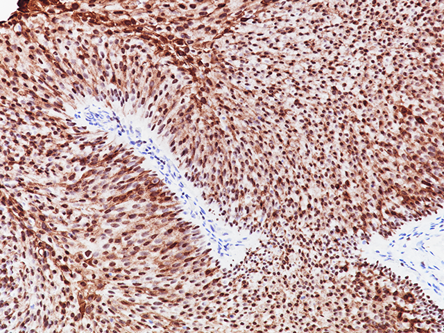 Bladder cancer stained with GATA-3 + Uroplakin II