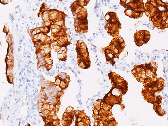 Lung carcinoma stained with Mesothelin