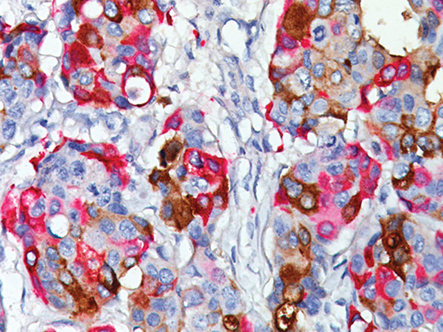 Breast cancer stained with GCDFP-15 + Mammaglobin.
