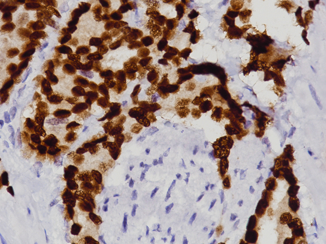 Prostate cancer stained with NKX3.1 (RM)