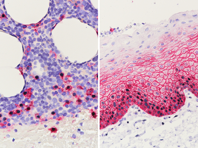 L: Multiple Myeloma stained with CD138 (red) + Cyclin D1 (black); R: Squamous Epithelium in Tonsil stained with CD138 (red) + Cyclin D1 (black)