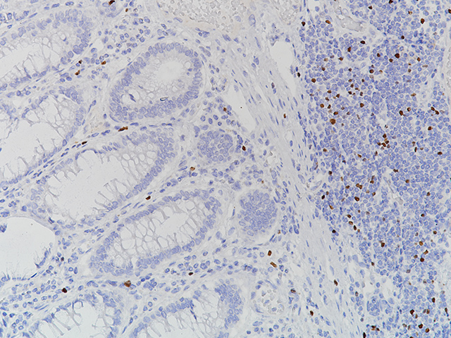 FOXP3 [86D] stained in normal colon (adjacent to colon cancer)