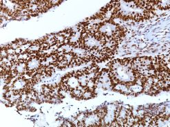Colorectal carcinoma stained with MLH-1 [BC23]