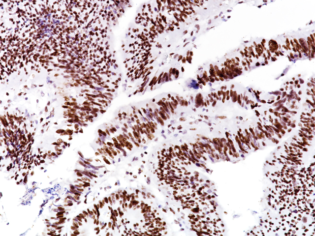 Colorectal carcinoma stained with MSH6 [BC19]