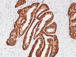 Prostate stained with PSAP [rACCP/1338] antibody