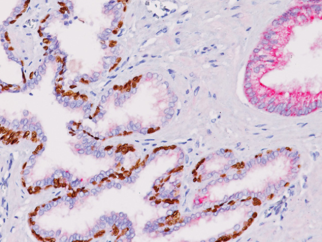 Prostate cancer stained with p63 + P504S