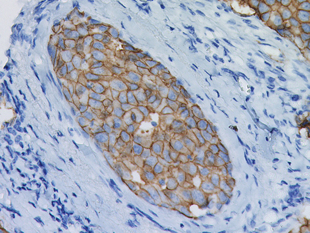 Breast cancer stained with c-erbB-2/HER2 antibody