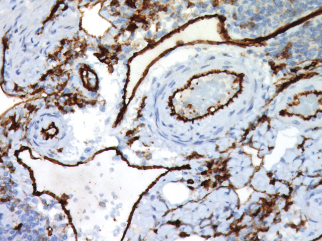 Colon cancer stained with CD31 antibody