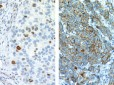 p21 antibody staining nuclear (left) and cytoplasmic (right)