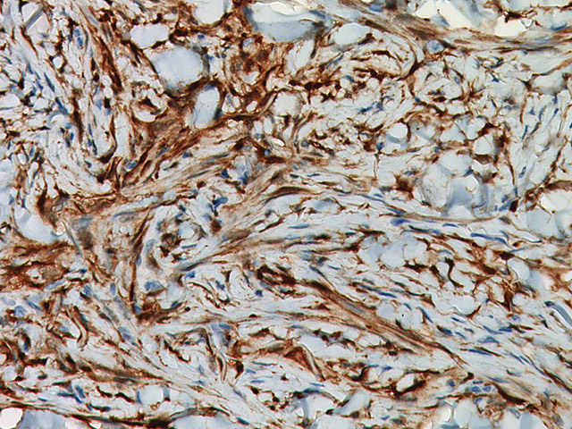 Dermatofibroma stained with Factor XIIIa Antibody