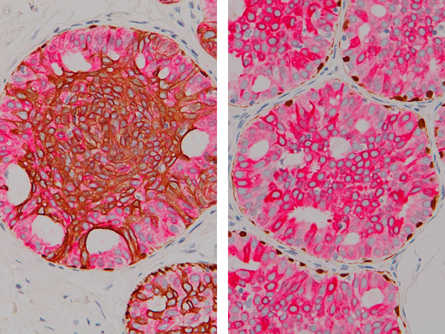 (Left) Hyperplasia of the Usual Type (Right) Atypical Ductal Hyperplasia