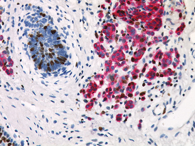 Melanoma stained with Pan Melanoma (FR) + Ki-67 (DAB) cocktail.