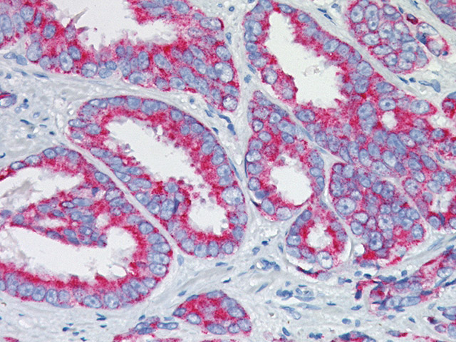 Prostate cancer stained with P504S antibody, 2X