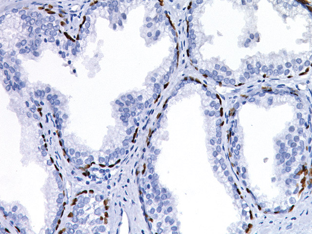 Prostate cancer stained with p63-2X antibody.
