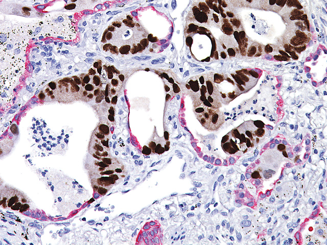 Colon cancer (brown) metastasized into lung tissue (red).