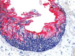 Reactive atypia meets CIS in bladder: CD44 (blue), p53 (DAB) & CK20 (FR)