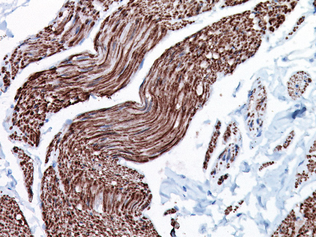 Bladder muscle stained with Smoothelin antibody