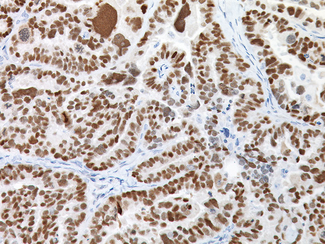 Serous ovarian adenocarcinoma stained with PAX8 Rabbit Antibody