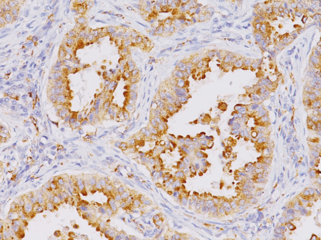 Lung adenocarcinoma stained with Napsin A mouse antibody