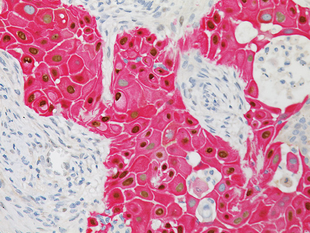 Squamous cell carcinoma stained with p63 + CK5 antibody