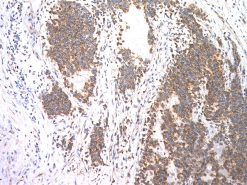 Ewing's sarcoma stained with CD99 antibody