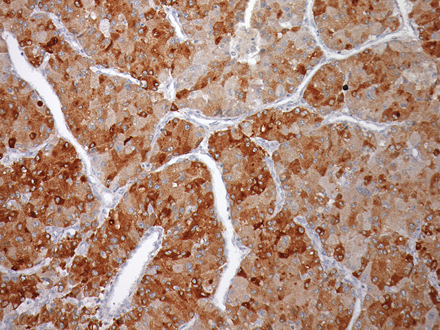Liver cancer stained with Glypican-3 antibody