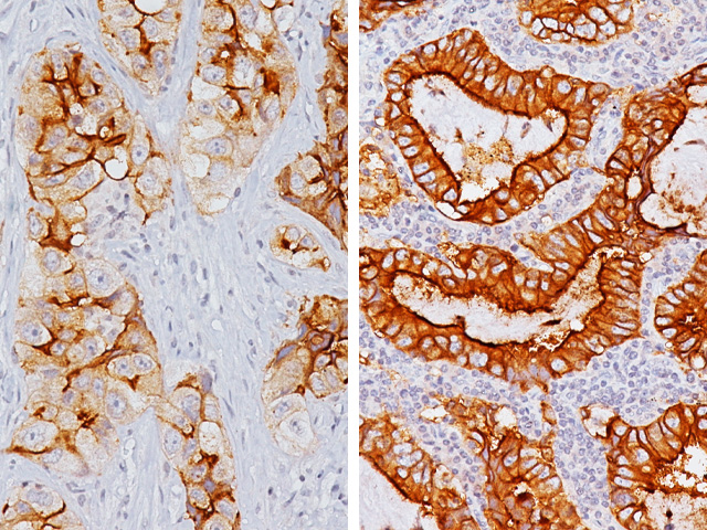 Lung adenocarcinoma from L to R: 2+ staining, 3+ staining with Folate Receptor alpha antibody