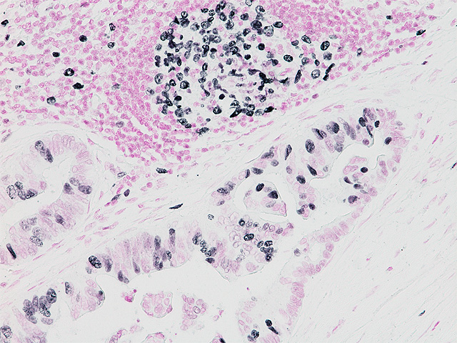 Ki-67 on Human Colon Cancer counter-stained with Feulgen's