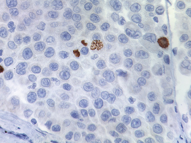 Melanoma stained with Phospho-Histone H3 antibody