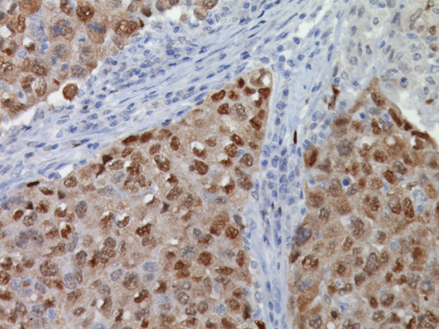 Breast cancer stained with Heat Shock Protein 70 antibody
