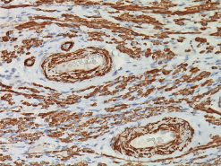 Uterus stained with Smooth Muscle Myosin Heavy Chain antibody.